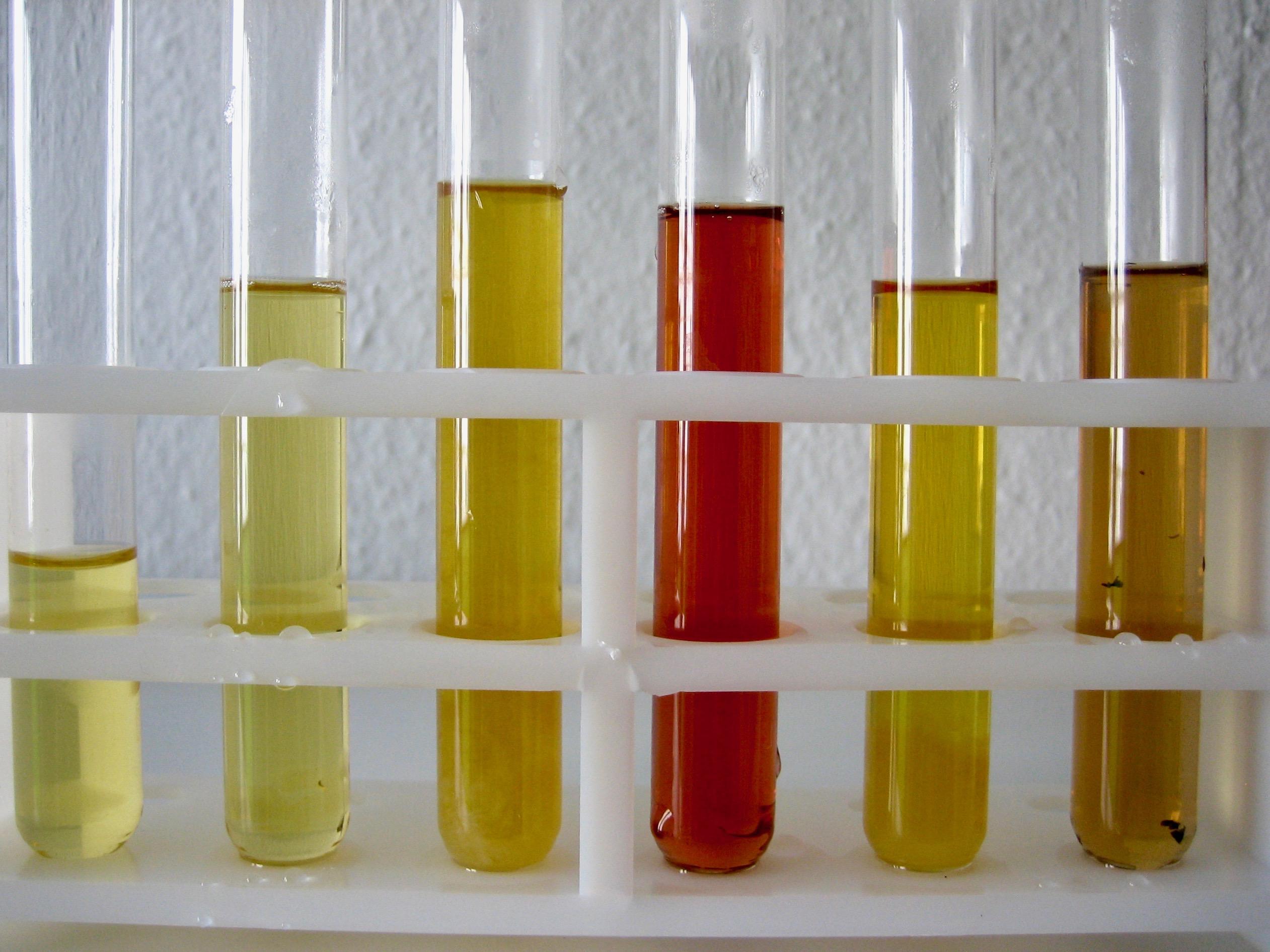 Urinfunktionstest zur Hinweisdiagnose auf Stoffwechselprobleme und Übersäuerung
